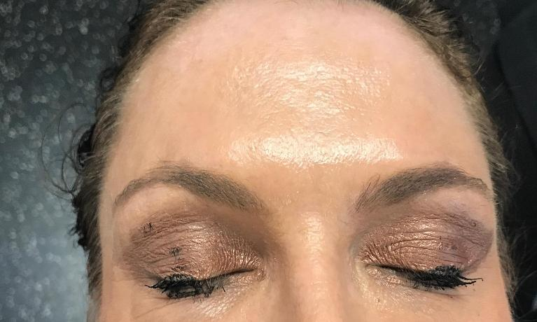 Anti-Wrinkle-Treatment-After-Image