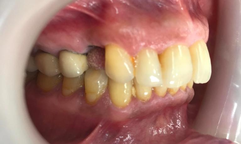 IMPLANT-Before-Image