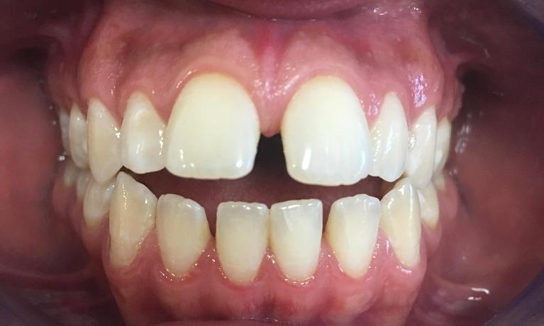 Orthodontics-Before-Image